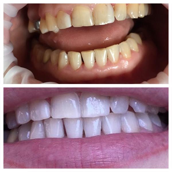 Как отбеливать зубной протез в домашних условиях 481